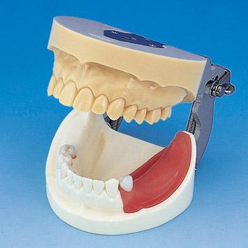 Modelo de Maxilar de Implante de Práctica [IMP1001-UL-SP-FEM]