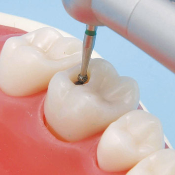dental caries the mild to moderate These forms are used to determine dental readiness  treatment or follow-up indicated for dental caries  requires removal of supragingival or mild to moderate.